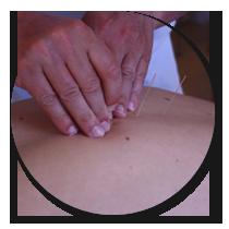 Klinik Wellness arbejder med 360  af de væsentligste akupunkturpunkter.